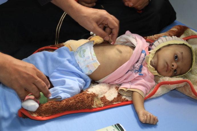 Millions of children under five still die each year from preventable causes