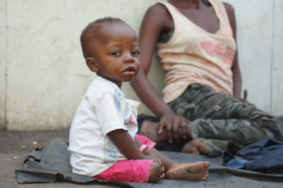 400,000 children under five could die in DRC's malnutrition crisis