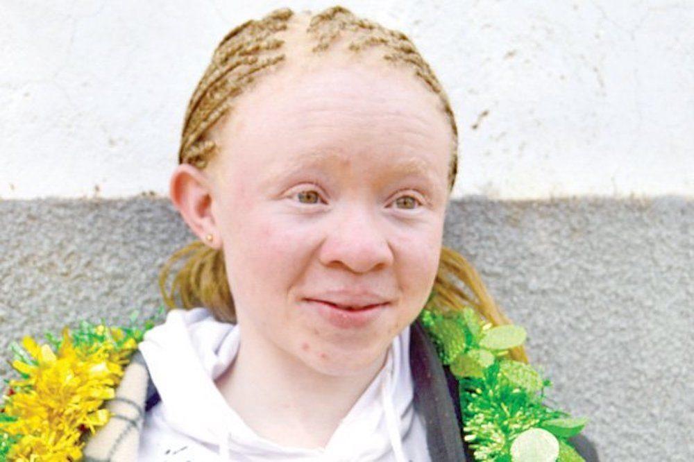 Albino big tits picture 21